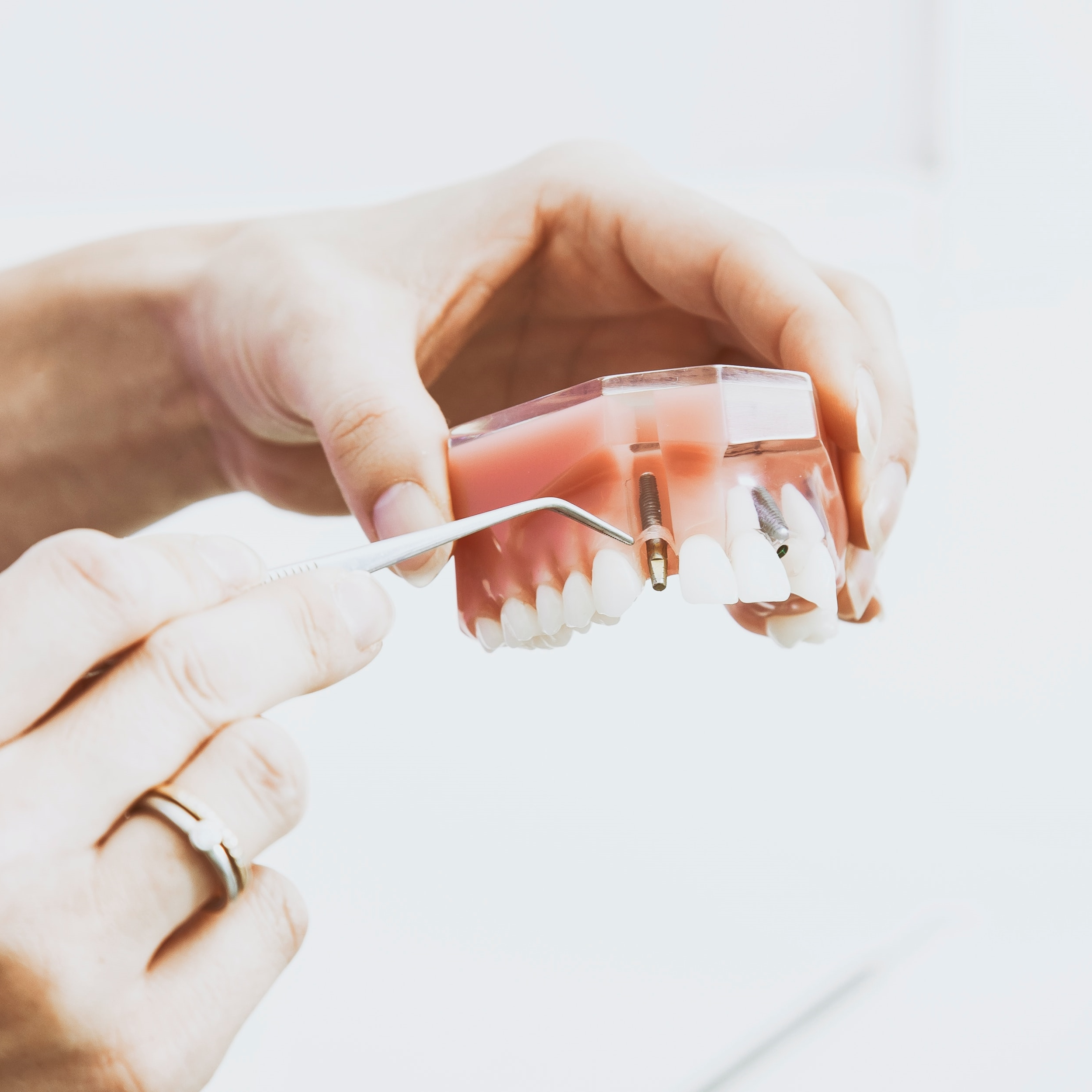 dantų implantavimas vilniuje