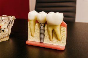 dantų implantai kaina