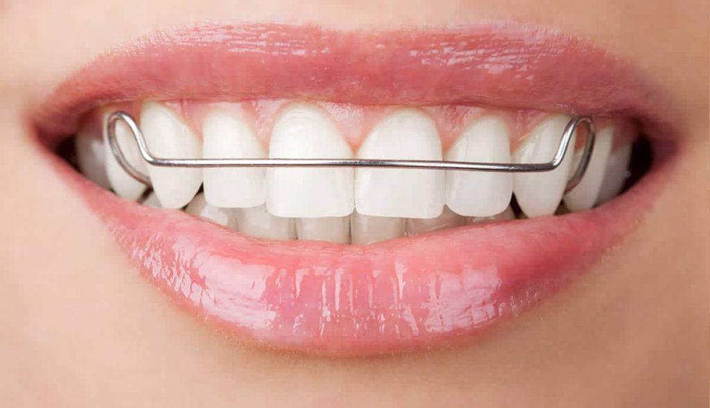 ortodontinės dantų tiesinimo plokštelės vilnius kaina