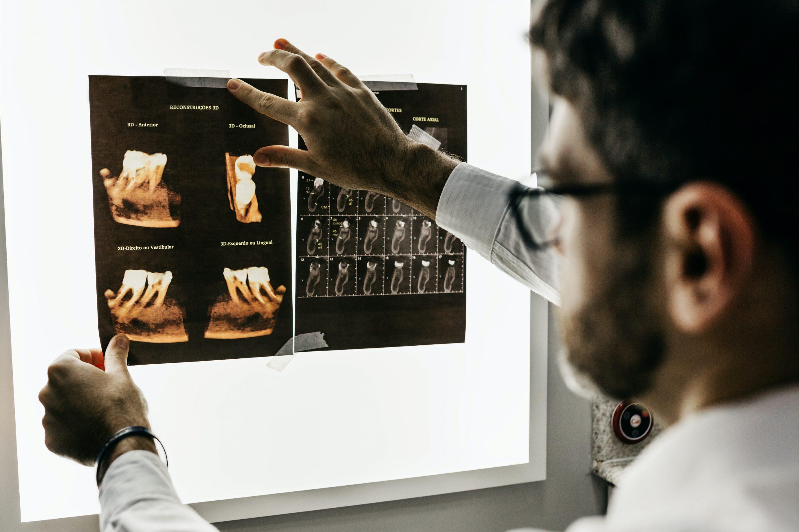 odontologiniai tyrimai prieš implantaciją