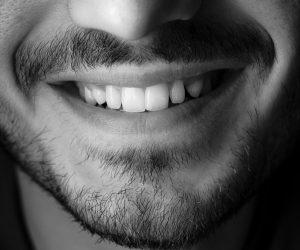 etstetinis dantų plombavimas